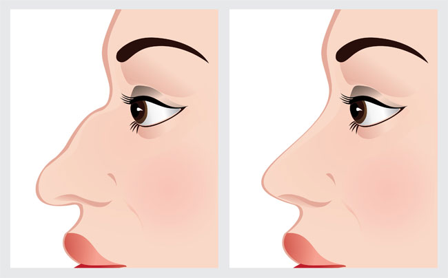 bigstock-Woman-face-before-and-after-no-50551520