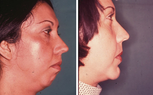 Chin Implants Before and After Patient 1