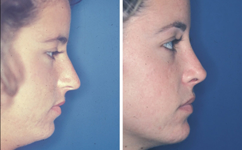 Chin Implants Before and After Patient 8