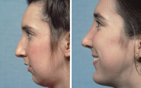 Chin Implants Before and After Patient 9