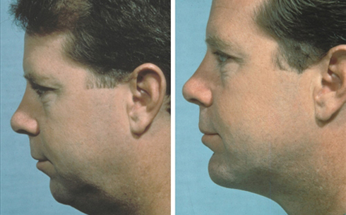 Chin Implants Before and After Patient 10