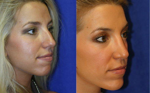 Chin Implants Before and After Patient 3
