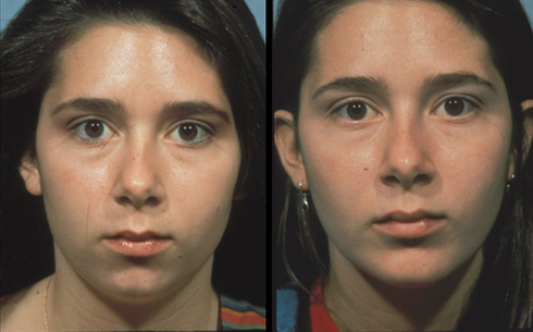 Chin Implants Before and After Patient 2