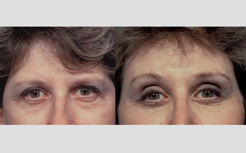 Eyebrow and Forehead Lift Before and After Patient 1