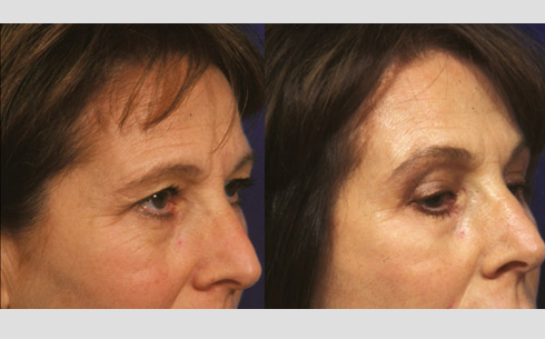 Eyebrow and Forehead Lift Before and After Patient 10