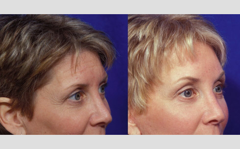 Eyebrow and Forehead Lift Before and After Patient 2