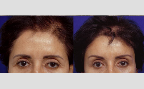 Eyebrow and Forehead Lift Before and After Patient 4