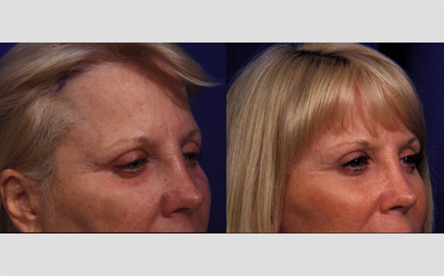 Eyebrow and Forehead Lift Before and After Patient 7