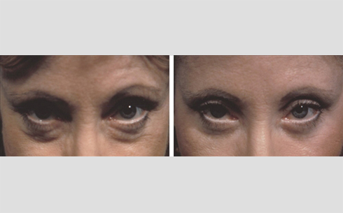 Eyelid Surgery Before and After Patient 1
