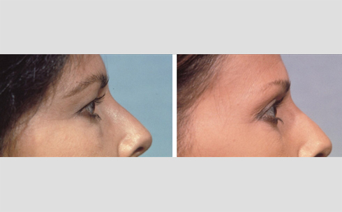 Eyelid Surgery Before and After Patient 10