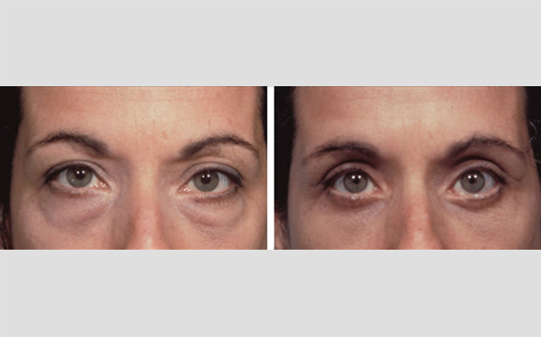 Eyelid Surgery Before and After Patient 11