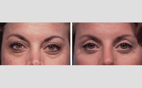 Eyelid Surgery Before and After Patient 12