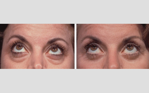 Eyelid Surgery Before and After Patient 13