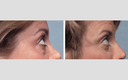 Eyelid Surgery Before and After Patient 14
