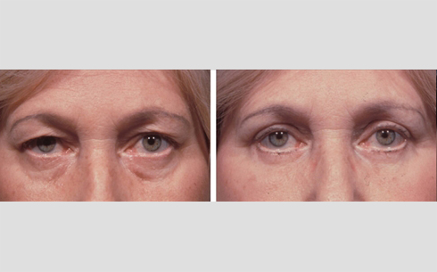 Eyelid Surgery Before and After Patient 16