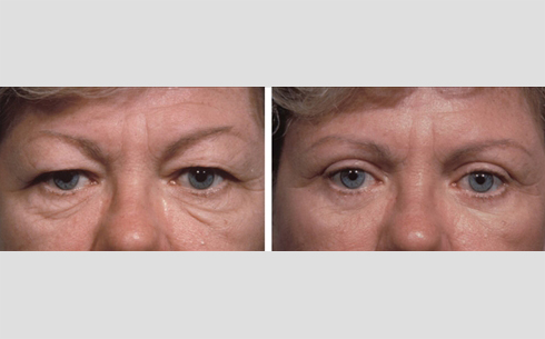 Eyelid Surgery Before and After Patient 17