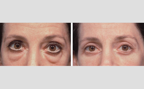 Eyelid Surgery Before and After Patient 18