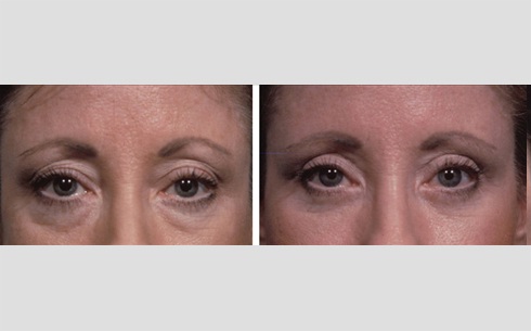 Eyelid Surgery Before and After Patient 19