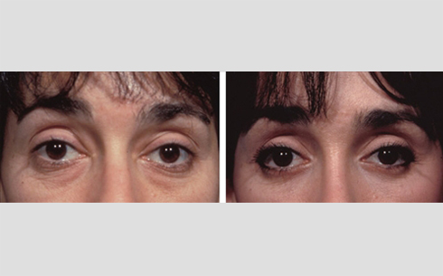 Eyelid Surgery Before and After Patient 2