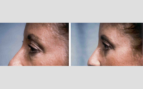 Eyelid Surgery Before and After Patient 20