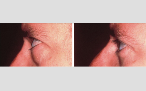 Eyelid Surgery Before and After Patient 3