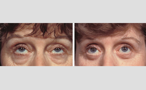 Eyelid Surgery Before and After Patient 4