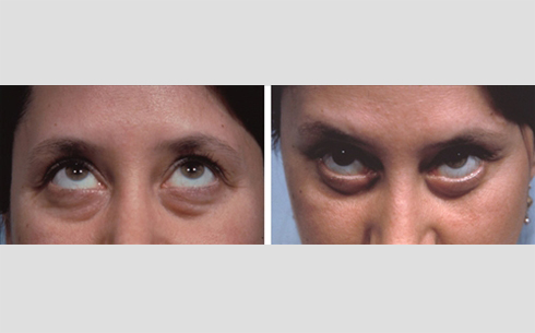 Eyelid Surgery Before and After Patient 5