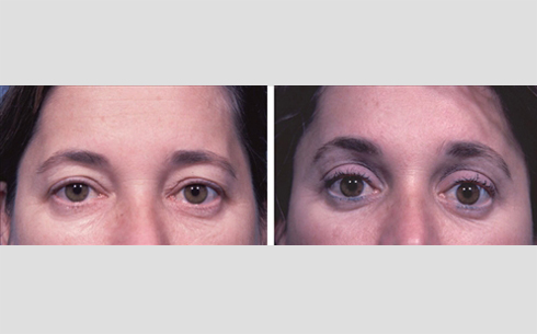 Eyelid Surgery Before and After Patient 7