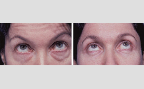 Eyelid Surgery Before and After Patient 8