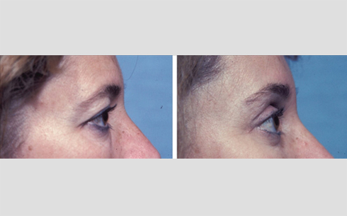 Eyelid Surgery Before and After Patient 9