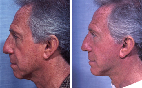 Facelift and Chin Implants Before and After Patient 1