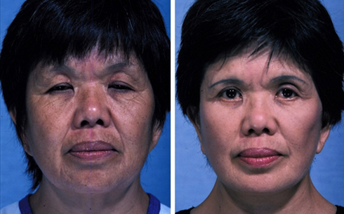 Facelift and Chin Implants Before and After Patient 3