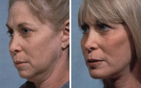 Facelift and Chin Implants Before and After Patient 4