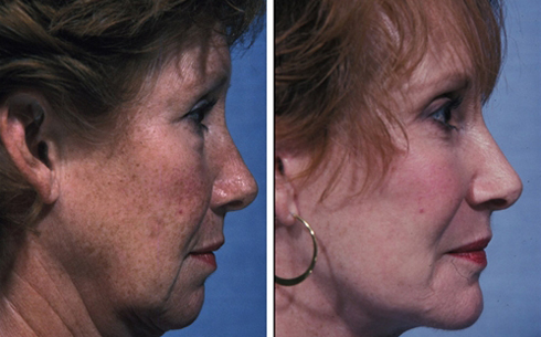 Facelift and Chin Implants Before and After Patient 5