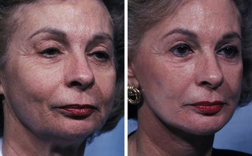 Facelift and Chin Implants Before and After Patient 6