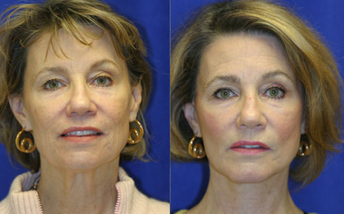 Facelift and Chin Implants Before and After Patient 2
