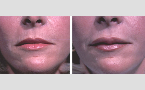 Facial Fillers and Lip Enhancement Before and After Patient 1