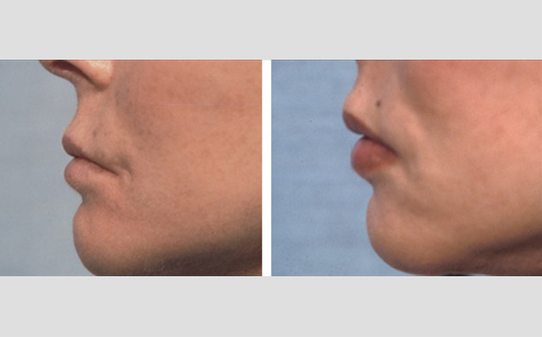 Facial Fillers and Lip Enhancement Before and After Patient 2