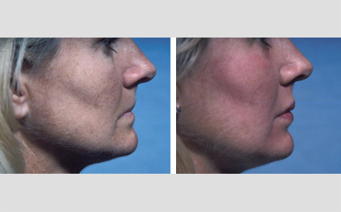 Facial Fillers and Lip Enhancement Before and After Patient 3