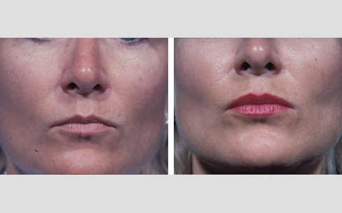Facial Fillers and Lip Enhancement Before and After Patient 4