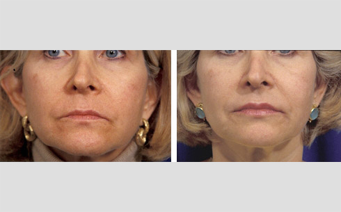 Facial Fillers and Lip Enhancement Before and After Patient 5