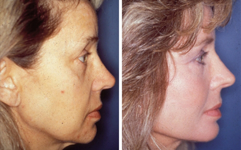 Facelift and Midface Implants Before and After Patient 1