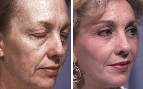 Facelift and Midface Implants Before and After Patient 10