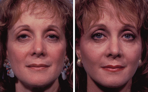 Facelift and Midface Implants Before and After Patient 2