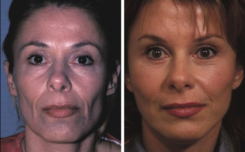 Facelift and Midface Implants Before and After Patient 3