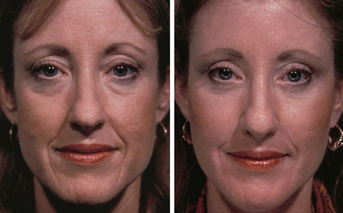 Facelift and Midface Implants Before and After Patient 4