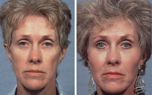 Facelift and Midface Implants Before and After Patient 5