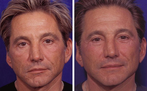 Facelift and Midface Implants Before and After Patient 6