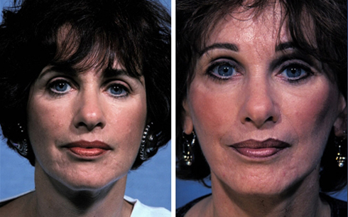 Facelift and Midface Implants Before and After Patient 7