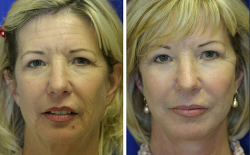 Facelift and Midface Implants Before and After Patient 8